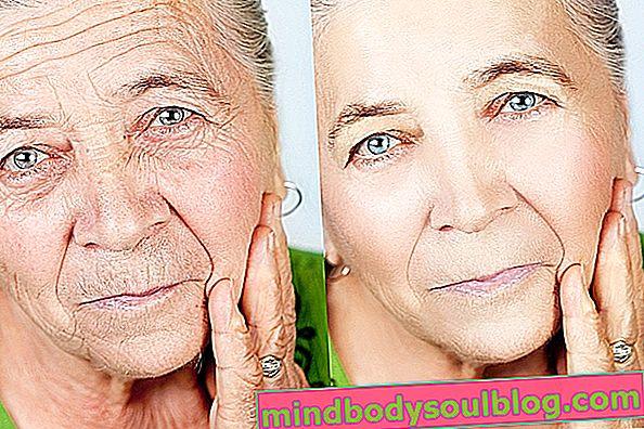 Pengangkatan wajah: apa itu, kapan diindikasikan dan bagaimana melakukannya