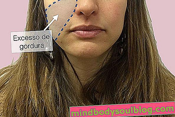 כיצד עובד ניתוח עיצוב פנים