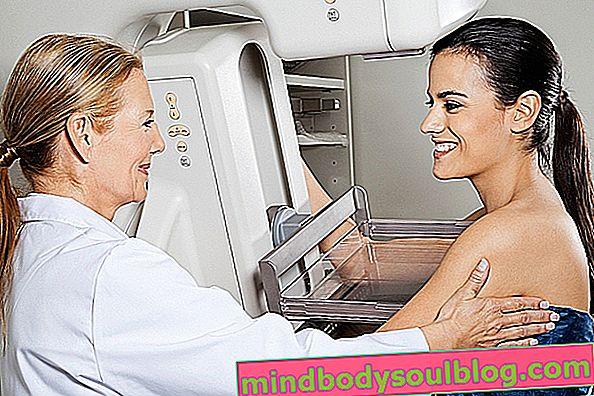 Mastectomie: qu'est-ce que c'est, quand elle est indiquée et principaux types