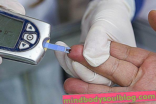 ما هو الجلوكوز في الدم وكيفية قياسه والقيم المرجعية