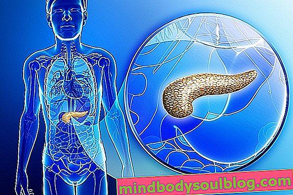 Comment savoir si vous avez une maladie du pancréas