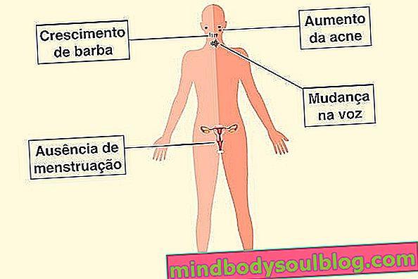 Testostérone élevé chez la femme: comment télécharger et identifier