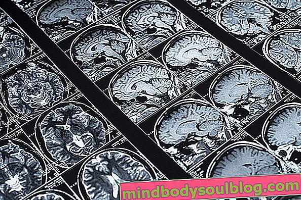 Qu'est-ce que la microangiopathie (gliose), ses causes et que faire