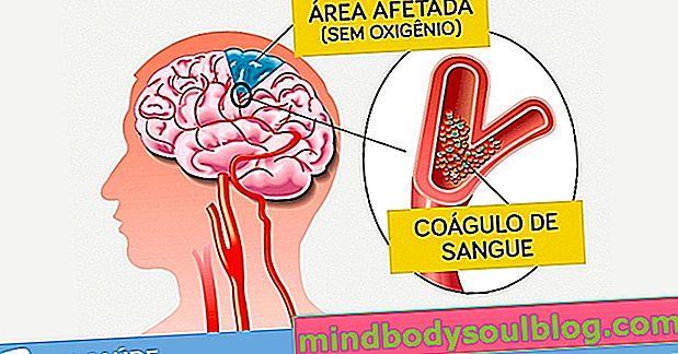 Thrombose cérébrale: qu'est-ce que c'est, symptômes, causes et traitement