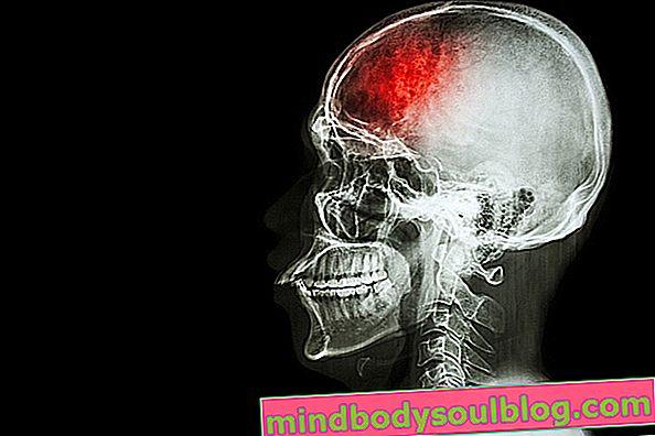 Iskemia serebral: apa itu, gejala dan pengobatannya