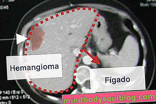 Hémangiome dans le foie (hépatique): qu'est-ce que c'est, symptômes et comment traiter