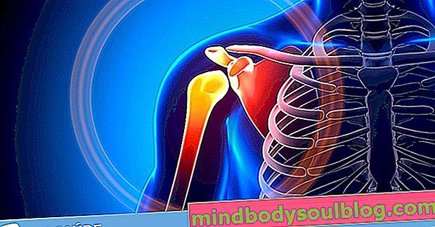 Douleur à l'épaule: 8 causes principales et comment traiter