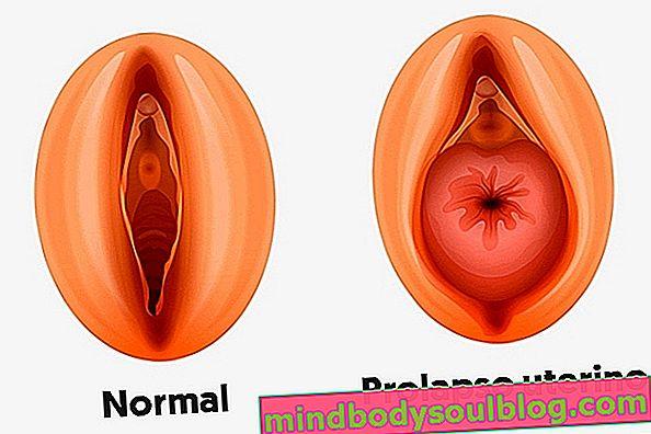 Co to jest wypadanie macicy, główne objawy i leczenie