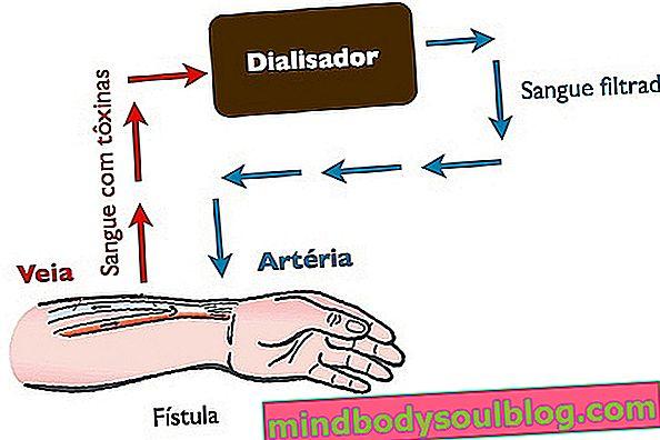Was ist Hämodialyse, wofür ist es und wie funktioniert es?