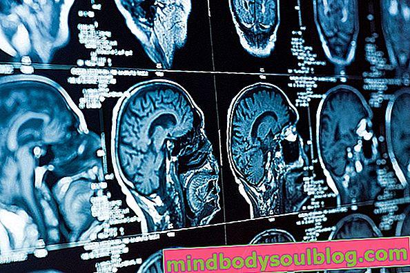 תסמונת אוכף ריקה: מה זה, תסמינים וטיפול