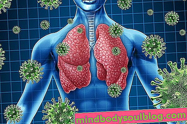 Wie man eine Lungeninfektion und mögliche Komplikationen behandelt