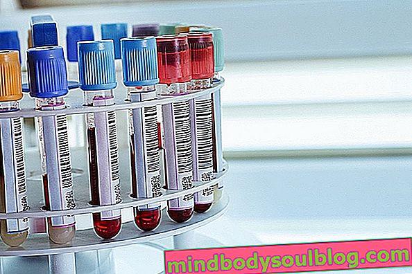 Tests, die Anämie bestätigen