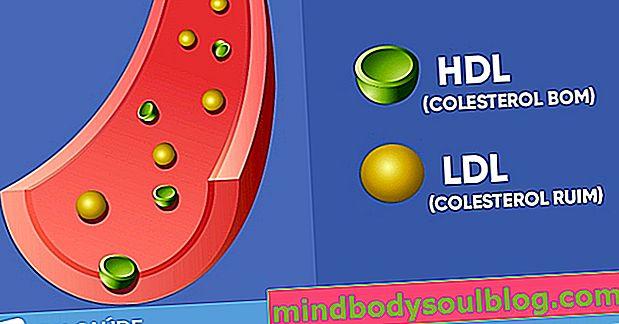 善玉コレステロールと悪玉コレステロールの違いを知る