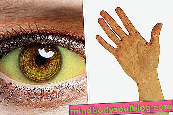 ما يمكن أن يكون عيون صفراء