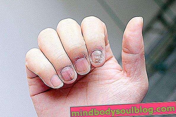 爪乾癬とは何ですか、主な症状と治療