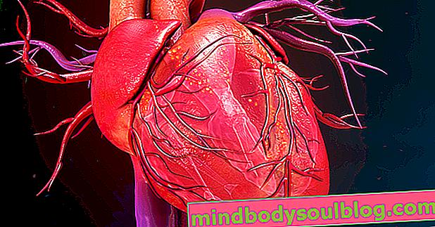 Herzischämie: Was es ist, Hauptsymptome und Behandlung