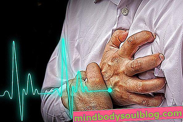 النوبة القلبية: الأسباب والعواقب