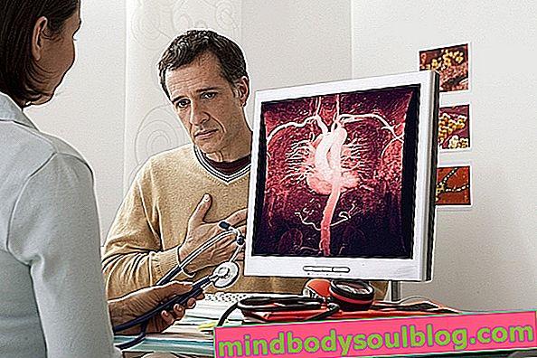 Aorta ectasia: Was es ist, was sind die Symptome und wie zu behandeln