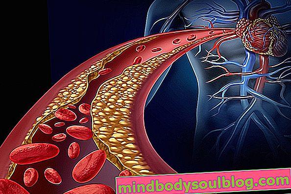 סוגים עיקריים של אנגינה, תסמינים וכיצד לטפל