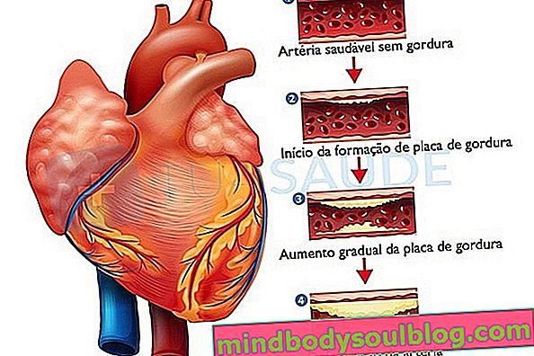 Behandlung der Aortenverkalkung