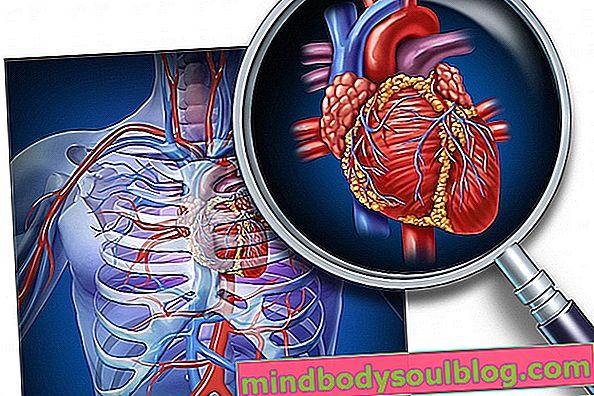 מהן מחלות לב וכלי דם