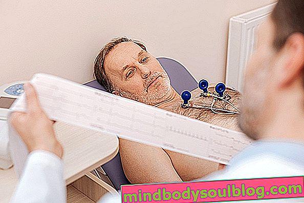 Was ist Perikarderguss, Symptome, Hauptursachen und Behandlung