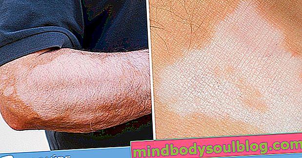 Quelles sont les causes des taches blanches sur la peau et que faire