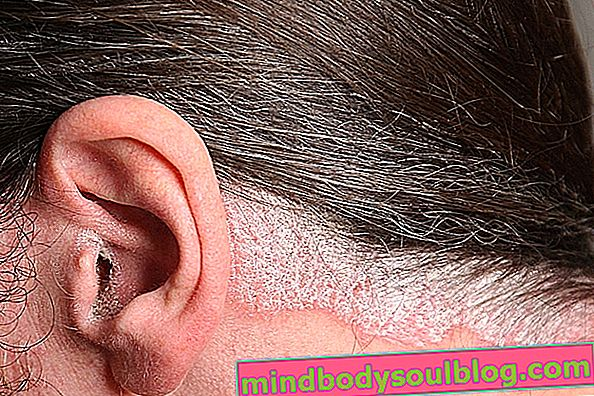 Psoriasis du cuir chevelu: qu'est-ce que c'est et principaux traitements