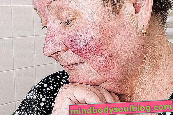 Rougeurs sur le visage: 7 causes principales et que faire