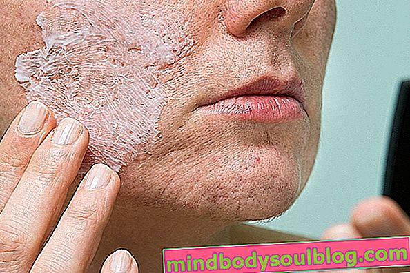 Gel contre l'acné Vitacid: comment utiliser et effets secondaires possibles