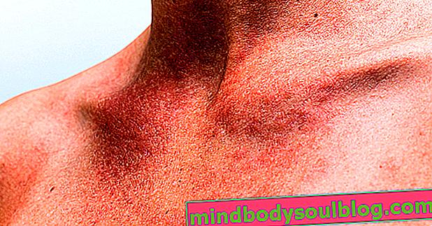 Allergie à la chaleur: qu'est-ce que c'est, symptômes et traitement