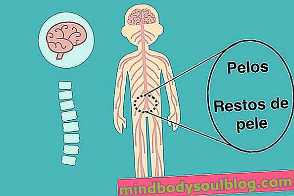 Kyste pilonidal: qu'est-ce que c'est, symptômes et comment le traiter