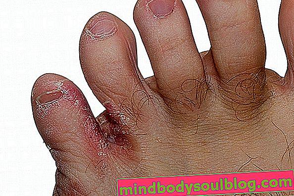 Qu'est-ce que la teigne sur le pied et comment traiter