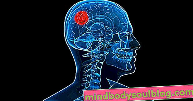 أعراض ورم الدماغ