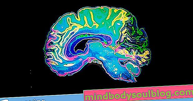 Як визначити ранню хворобу Альцгеймера