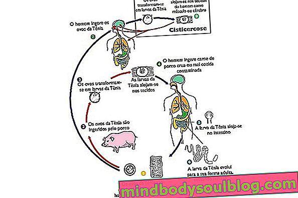מהי סיסטיקרקוזיס, כיצד לזהות ומחזור חיים