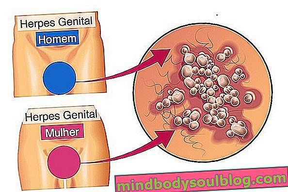 Предаване на генитален херпес: как да го получите и как да го избегнете