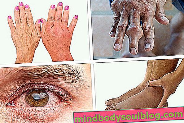 12 gejala Chikungunya dan berapa lama bertahan