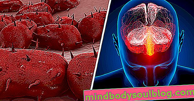 Comment identifier les symptômes de la méningite adulte