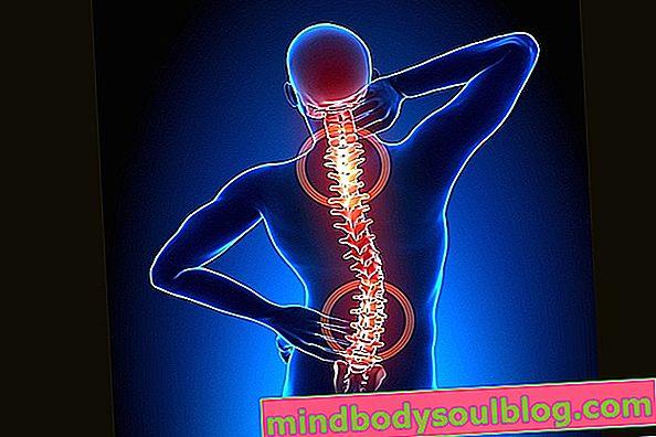 脊椎関節症とは何ですか?