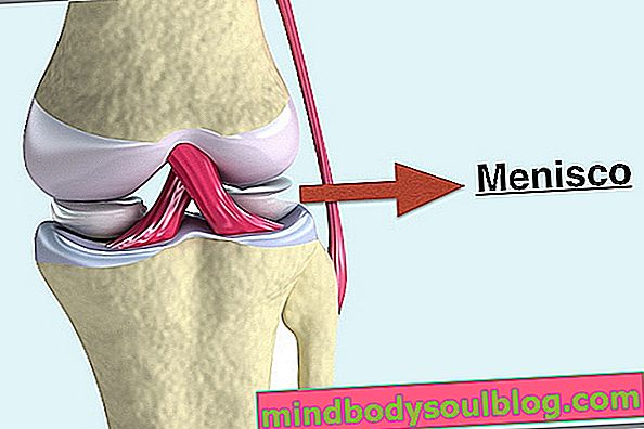 メニスカス損傷を特定して治療する方法