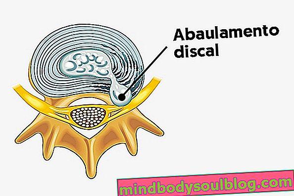 椎間板の突出(膨らみ):それが何であるか、症状、および治療方法