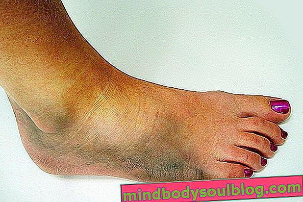 足首内反症の症状と治療法