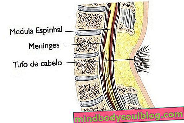 隠された二分脊椎:それが何であるか、症状と治療