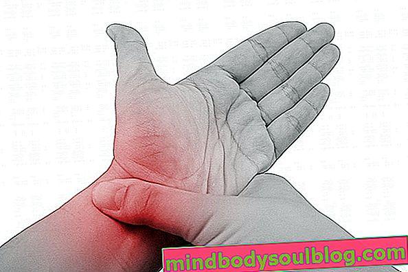 手首の痛みの8つの一般的な原因