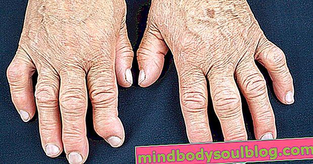 ما هو التهاب المفاصل والأعراض والتشخيص والعلاج