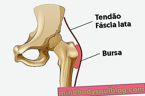 股関節滑液包炎:それが何であるか、主な症状と治療