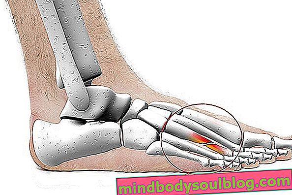 中足痛とは何ですか?