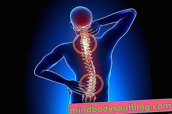 脊椎関節症の治療