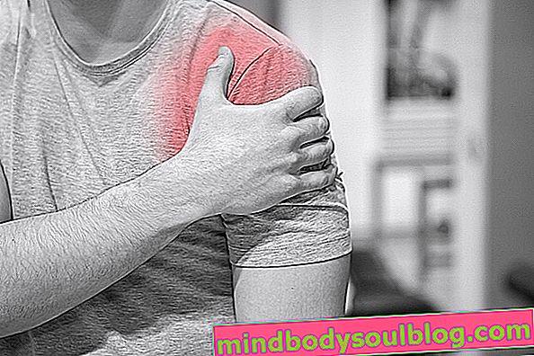 回旋筋腱板症候群とは何ですか?
